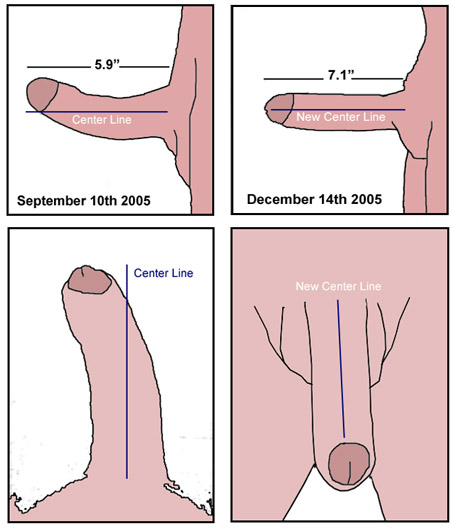 Pictures of the stages of penis curvature correction showing my bent penis before and after my curved penis was corrected