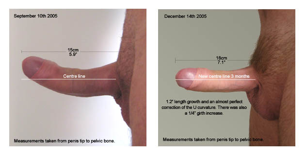 Penis curvature, penis curve, bent penis correction