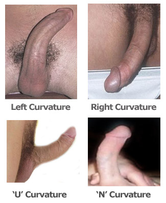 curved penis, bent penis